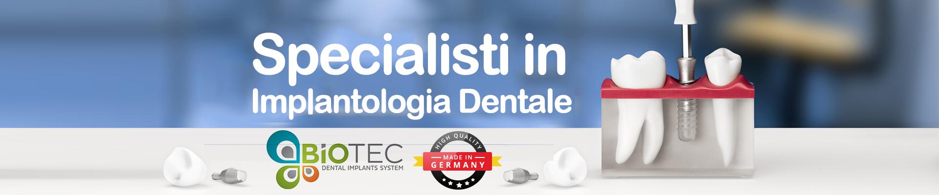 impianti_dentali-1